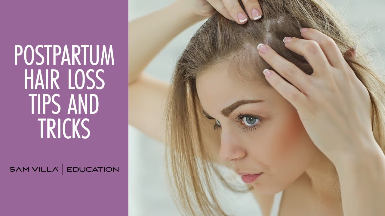 postpartum hair loss tips and tricks
