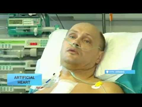First Ukrainian with Artificial Heart: Patient feels good after surgery