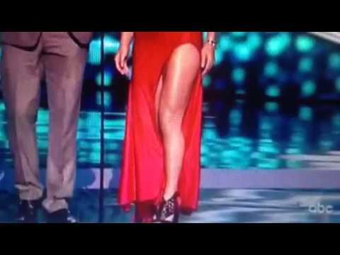 Lindsey Vonn Shows Hot Legs On ESPYs #ESPYs