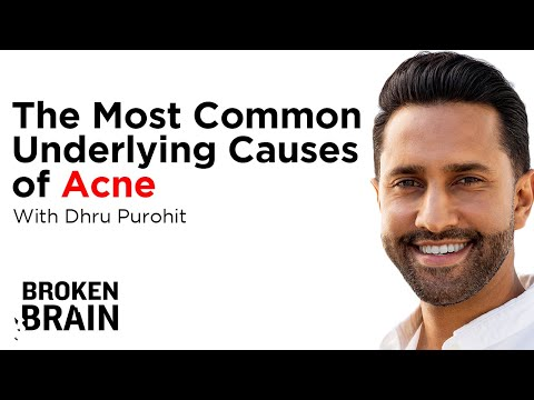 The Most Common Underlying Causes of Acne