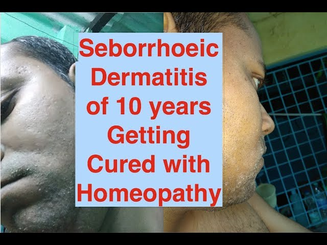 Seborrhoeic Dermatitis Real Time Case by Homeopathy