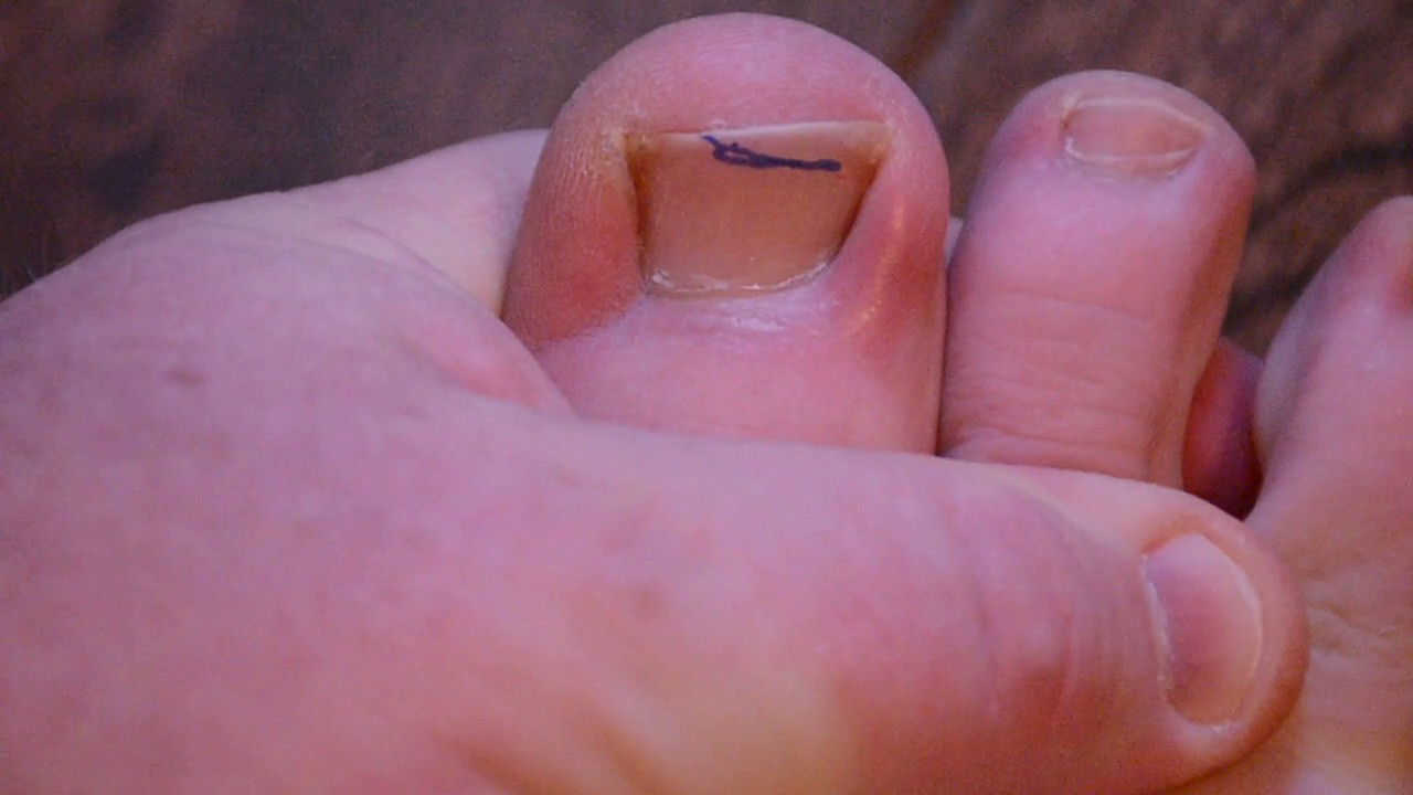 Cure Ingrown Toenails Forever! Best Cure - Naturally & Easily! - YouTube