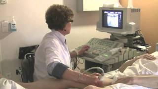 Marquage sous écho-doppler préopératoire pour pontage fémoro-poplité