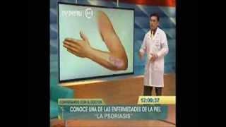 Psoriasis o Escamas en la Piel: ¿Qué es? Diagnostico y Tratamientos - Cuidados - Lima Peru