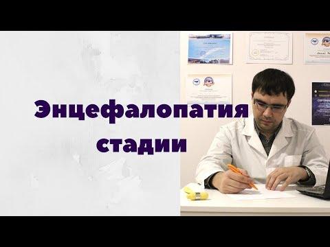 Дисциркуляторная энцефалопатия стадии и их проявления