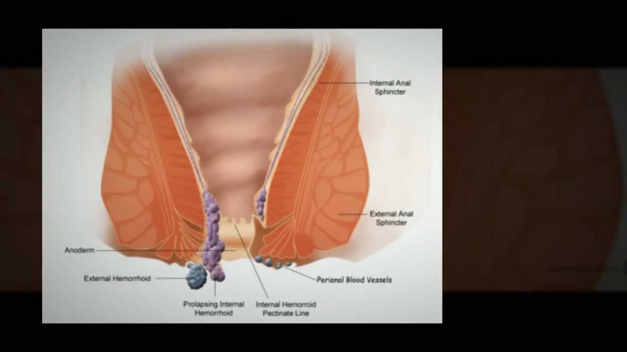 What Are The Symptoms of External Hemorrhoids - External ...