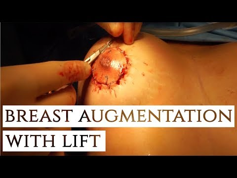 Breast Augmentation with Lift | Incredible Results!