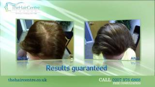 Video The Hair Centre London download MP3, 3GP, MP4, WEBM, AVI, FLV Juni 2017