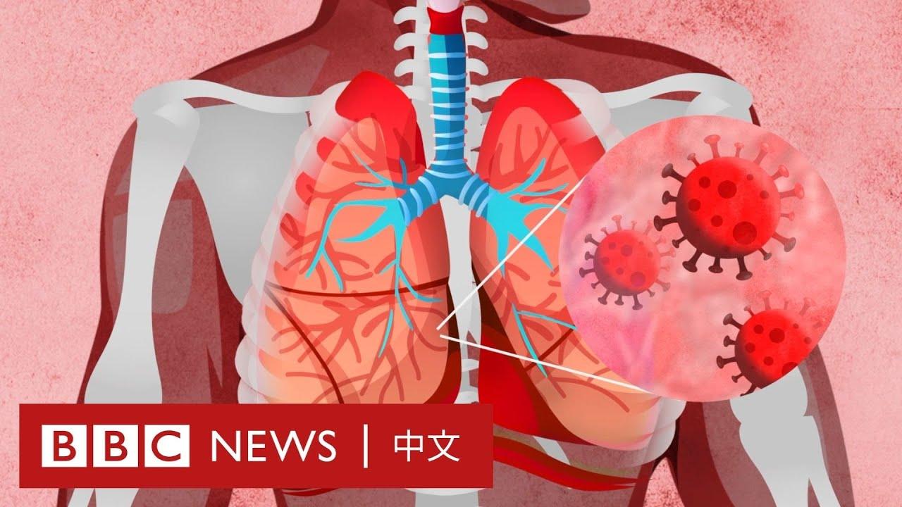 肺炎疫情:新冠病毒如何影響我們的身體?- BBC News 中文
