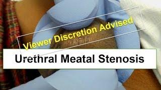 Urethral Meatal Stenosis (VIEWER DISCRETION ADVISED)