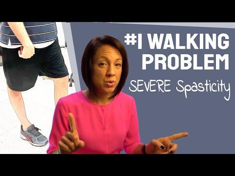Fix a stiff leg: How to treat severe spasticity