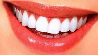 Evde kolay diş taşı temizliği.Doğal bakım ve tedavi yöntemleri.
