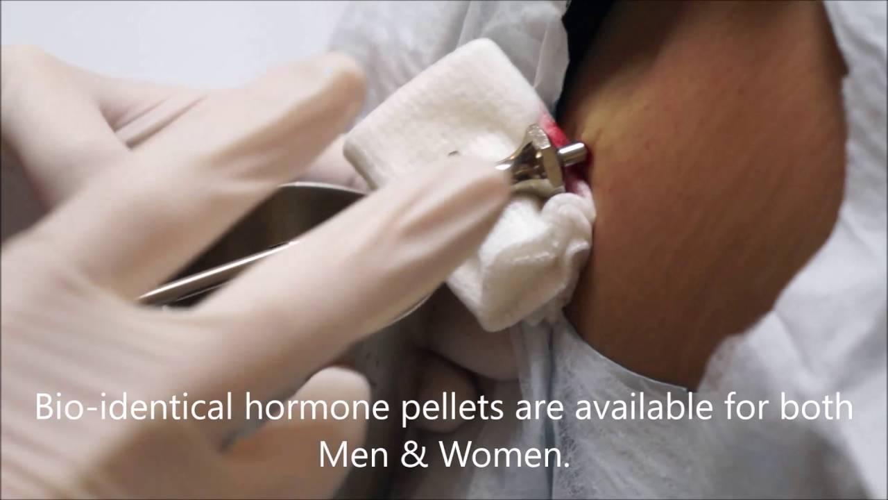 Bio-Identical Hormone Pellets - Dr. Shel Wellness
