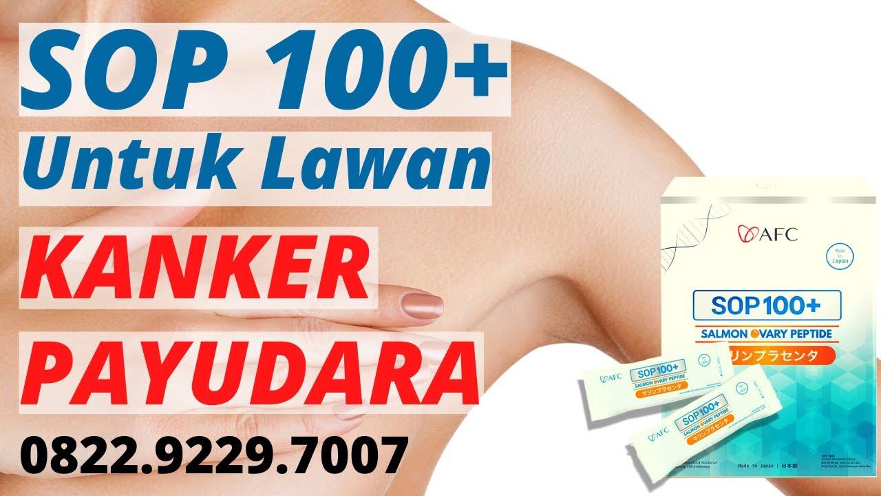 Testimoni SOP 100+ Kanker Payudara Stadium 4 | AFC Life ...
