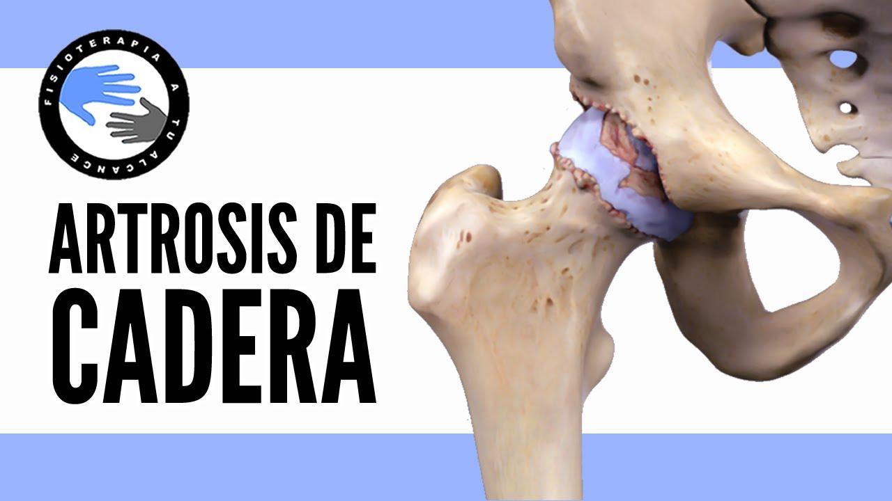 Artrosis de cadera, que es y porque se produce