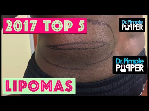 Dr Pimple Popper's Top 5 Lipoma POPS for 2017