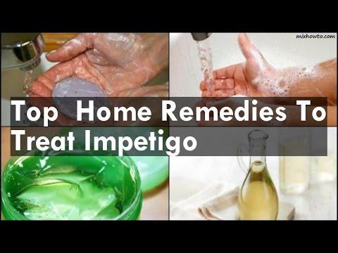 Home Remedies To Treat Impetigo