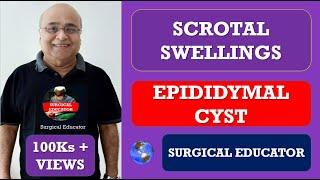 EPIDIDYMAL CYST- Scrotal Swellings