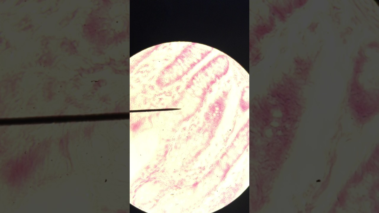Microscope Slides Of A Colon Anatomy And Physiology I Youtube