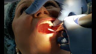 Установка имплантов на верхнюю челюсть в стоматологии