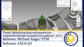 Unter Verwendung Einteiliger Implant Preview — Rulmeca Germany
