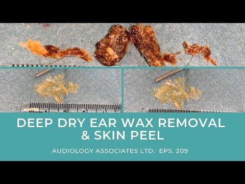 DEEP DRY EAR WAX REMOVAL & SKIN PEEL - EP 209