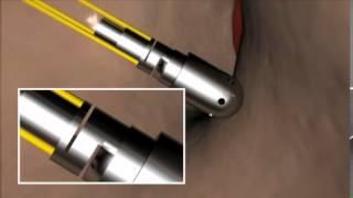TactiCath Quartz's unique fiber optic technology