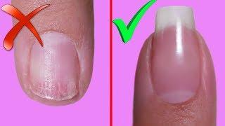 как сделать так чтобы ногти не слоились