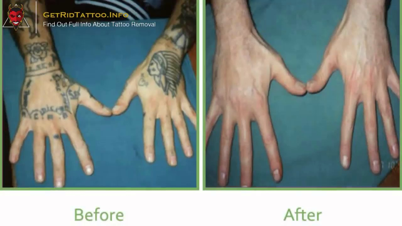 Hand Tattoo Removal – All you must to know about tattoo removal ...
