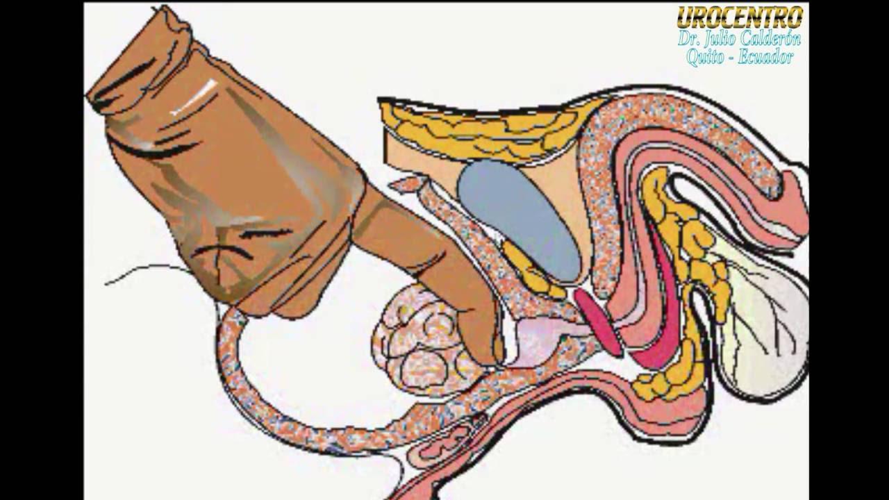 próstata operación