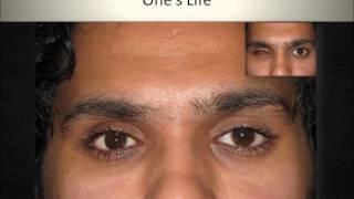 Custom Made Ocular Prosthesis: Artificial Eyes