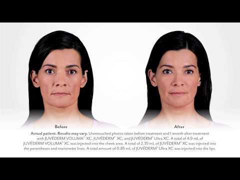 Juvederm Collection of Fillers Testimonial - Catherine