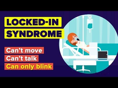 Apa Itu Locked-In Syndrome?