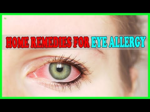How To Relieve Itchy Allergy Eyes Instantly? - Home Remedies For Eye Allergy