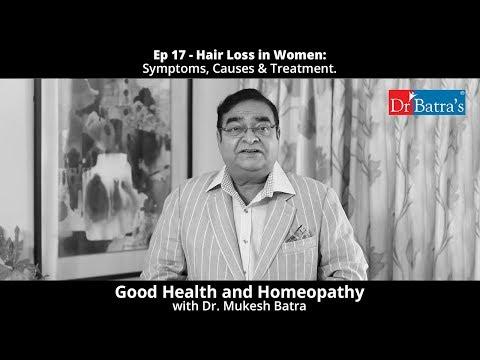 Hair Loss In Women | Symptoms, Causes & Treatment
