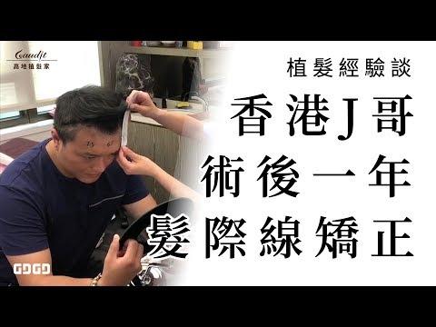 植髮經驗談 │ 前額禿也會憂鬱症?香港J哥台灣植髮髮際線矯正完勝壞心情 │ 林宜蓉醫師 Dr.Yi Jung Lin 台灣植髮 Taiwan hair transplant