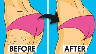 A Natural Cellulite Cure that Works Wonders!