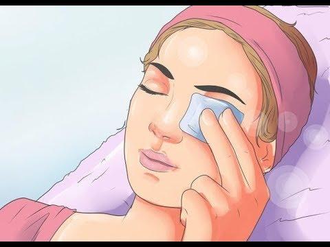 أسهل طريقة لعلاج تورم العين المفاجئ Youtube