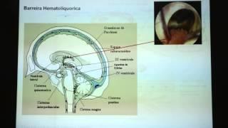 Sintomas edema cerebral