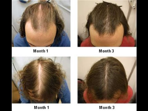 hair-loss-treatment|-natural-hair-growth|-how-to-stop-hair-loss|-how-to-regrow-hair