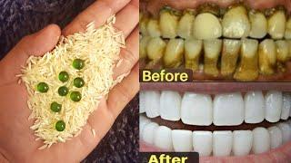 गंदे पीले दांत को तेजी से मोती जैसा सफेद बनाएं / चमकदार बना देगा ये अद्भुत नुस्खा / #Teethwhitening