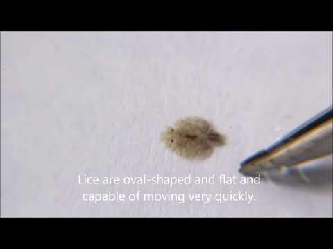 Fish Lice Parasite - Argulus