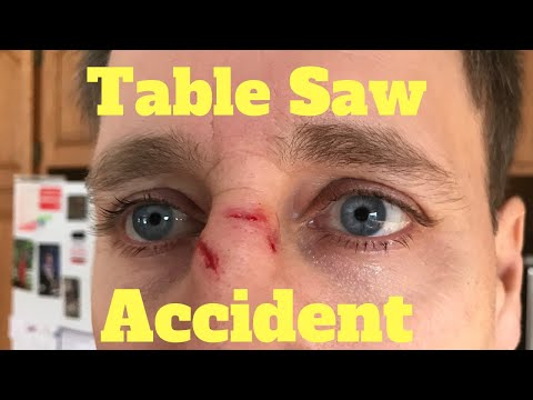 Table Saw Accident!