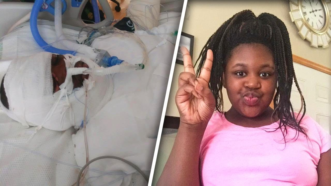 12 Year Old Girl Seriously Burned During Fire Challenge