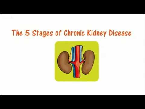 How to Identify The Stages of Chronic Kidney Disease