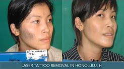 Laser Tattoo Removal Honolulu HI Way Gone Laser Tattoo Removal
