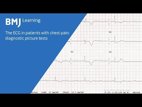 The ECG in patients with chest pain: diagnostic picture test (2 of 2)