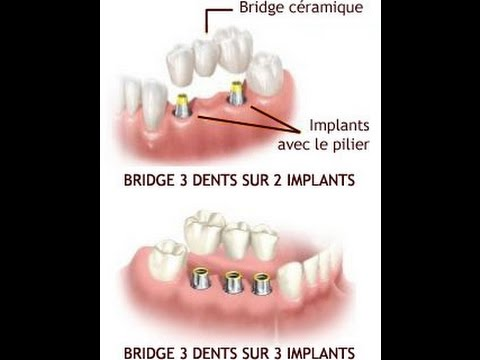 cout implant dentaire