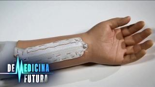Запчасти для homo sapiens  Протезы и импланты | Медицина будущего