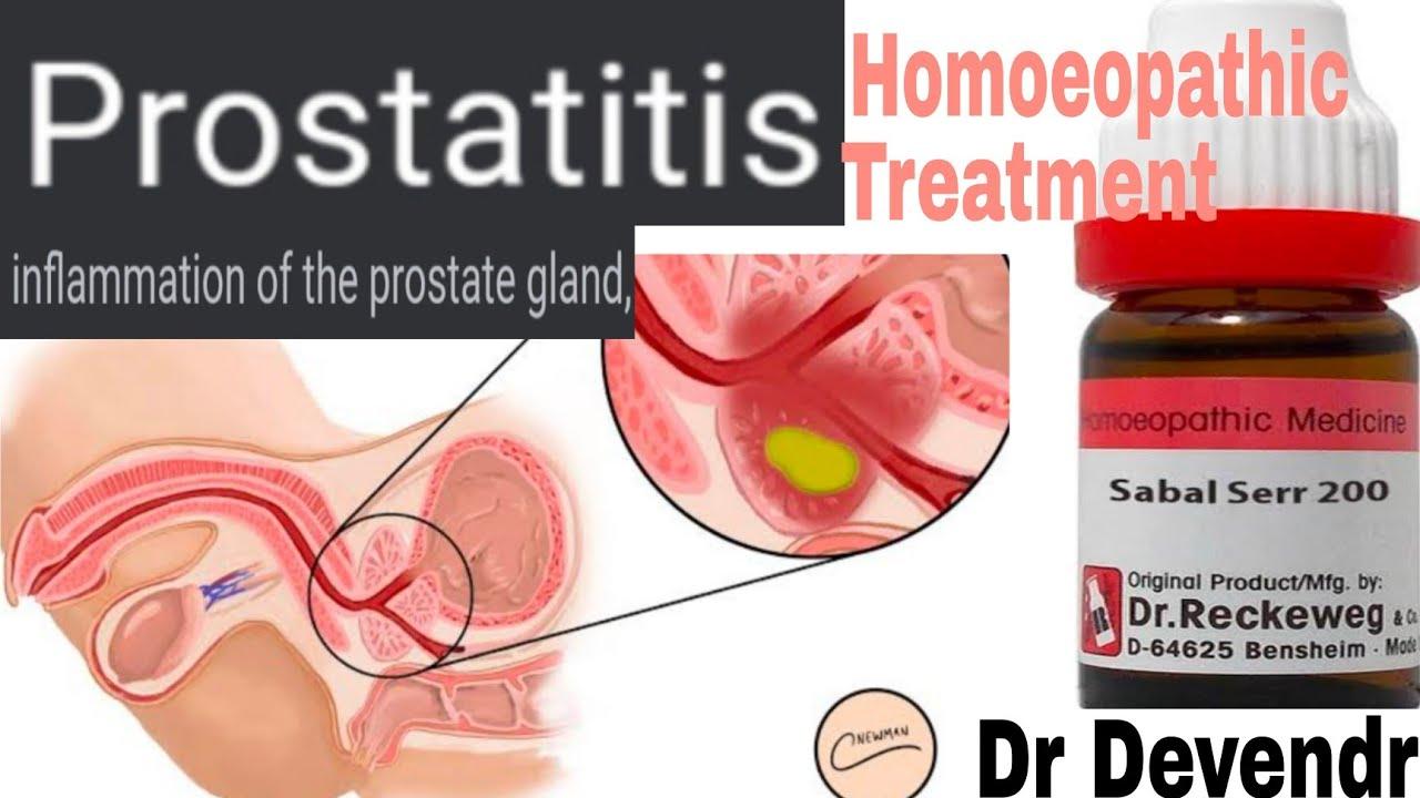 Prostatitis és Kon